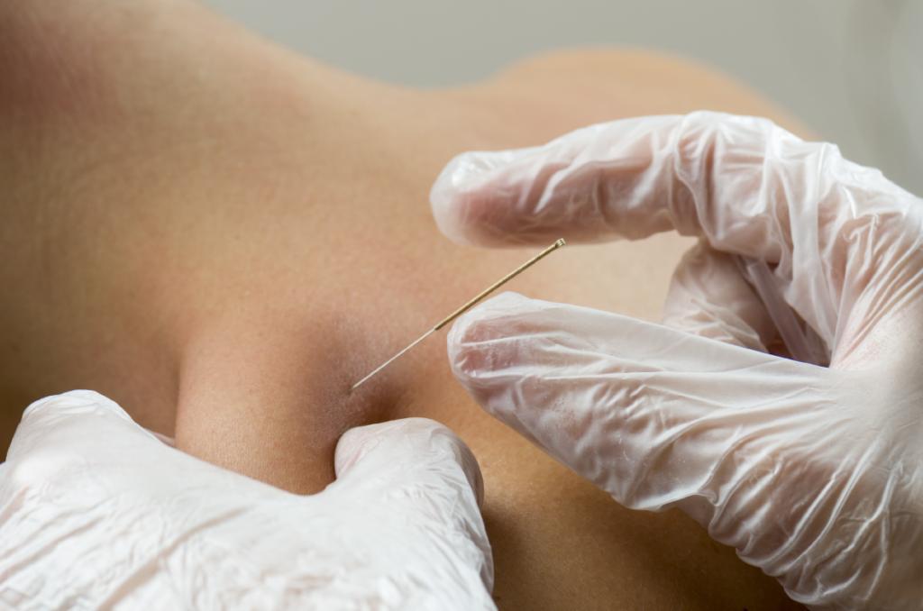 intramuscular stimulation page secondary image