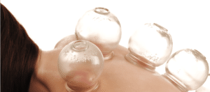 Cupping Therapy Background Image