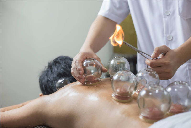 Cupping Therapy Top Image